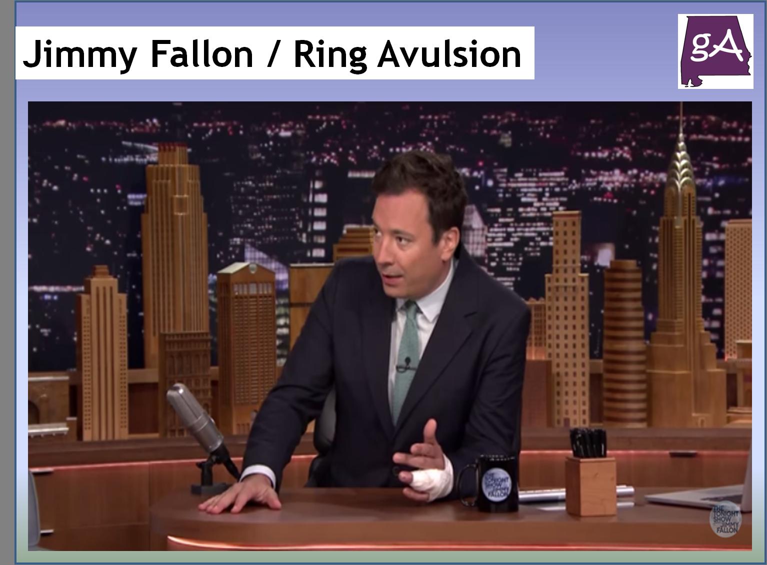 jimmy fallon talks about his ring avulsion don t google it geek